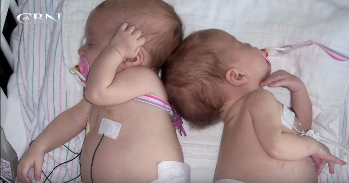 baby_twin_sisters_healed_from_rare_cancer_featured